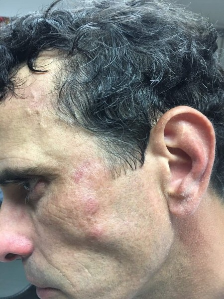 henrique-capriles-y-el-golpe-que-le-dieron-450×600.jpg