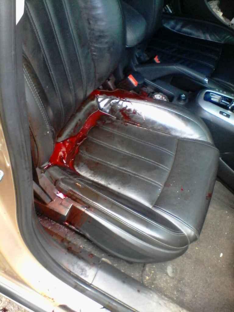 Sujetos le caen a tiros a un vehículo matan a una mujer y hieren a su acompañante en Baralt